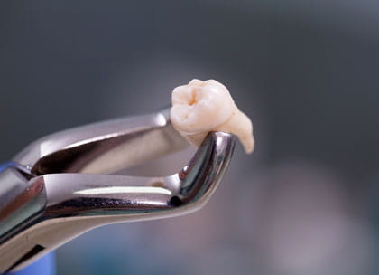 Molar tooth in forceps