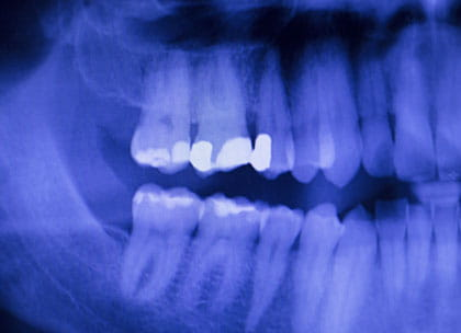 X-ray of fillings